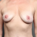 Breast Fat Transfer, Dr. Cassileth, Case 4 After
