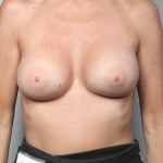 Breast Augmentation, Dr. Killeen, Case 3 After
