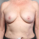 Breast Implant Revision, Dr. Killeen, Case 11 Before