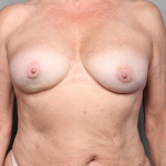 Breast Implant Revision, Dr. Killeen, Case 11 After
