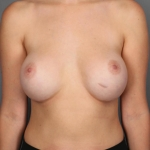 Breast Implant Revision, Dr. Killeen, Case 4 Before