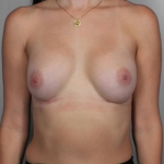 Breast Implant Revision, Dr. Killeen, Case 4 After