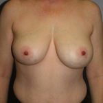 Breast Asymmetry, Dr. Cassileth, Case 17 Before