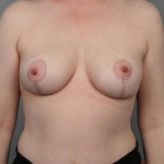 Breast Asymmetry, Dr. Cassileth, Case 17 After