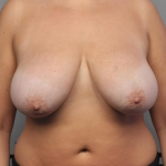 Breast Reduction, Dr. Cassileth, Case 9 Before