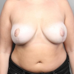 Breast Reduction, Dr. Cassileth, Case 9 After