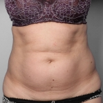 Liposuction, Dr. Chang, Case 1 Before
