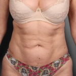 Liposuction, Dr. Chang, Case 1 After