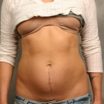 Liposuction, Dr. Cassileth, Case 2 Before