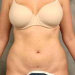 Liposuction, Dr. Cassileth, Case 4 Before