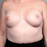 Breast Reconstruction Revision, Dr. Killeen, Case 2 Before
