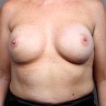 Breast Reconstruction Revision, Dr. Killeen, Case 2 After