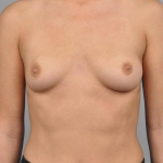 Breast Augmentation, Dr. Cassileth, Case 2 Before