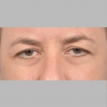 Blepharoplasty, Dr. Cassileth, Case 1 Before