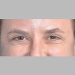 Blepharoplasty, Dr. Cassileth, Case 1 After