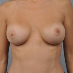 Breast Augmentation, Dr. Cassileth, Case 2 After