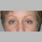 Blepharoplasty, Dr. Cassileth, Case 4 After