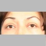 Blepharoplasty, Dr. Cassileth, Case 2 Before