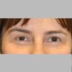 Blepharoplasty, Dr. Cassileth, Case 7 Before
