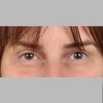 Blepharoplasty, Dr. Cassileth, Case 7 After