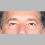Blepharoplasty, Dr. Cassileth, Case 8 Before