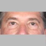 Blepharoplasty, Dr. Cassileth, Case 8 After