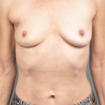 Breast Reconstruction Revision, Dr. Cassileth, Case 2 Before