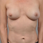 Breast Reconstruction Revision, Dr. Cassileth, Case 2 After