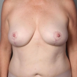 Breast Lift, Dr. Cassileth, Case 12 After