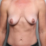 Breast Augmentation, Dr. Cassileth, Case 21 Before