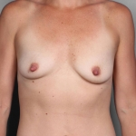 Breast Augmentation, Dr. Cassileth, Case 23 Before