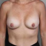 Breast Augmentation, Dr. Cassileth, Case 23 After