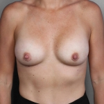 Breast Augmentation, Dr. Cassileth, Case 23 After