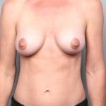 Breast Augmentation, Dr. Cassileth, Case 21 After