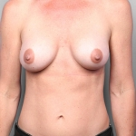 Breast Augmentation, Dr. Cassileth, Case 21 After