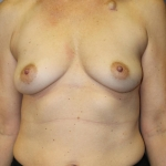 One Stage Breast Reconstruction, Dr. Cassileth, Case 32 Before