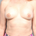 One Stage Breast Reconstruction, Dr. Cassileth, Case 32 After
