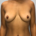 Breast Augmentation, Dr. Min, Case 11 Before