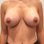 Breast Augmentation, Dr. Min, Case 11 After