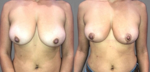 Breast Lift, Dr. Min, Before and After Case 12
