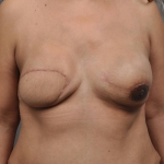 Breast Reconstruction Revision, Case 1, Dr. Cassileth Before