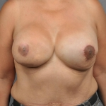 Breast Reconstruction Revision, Case 1, Dr. Cassileth After