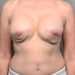 Breast Reconstruction Revision, Dr. Killeen, Case 3 Before