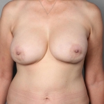 Breast Reconstruction Revision, Dr. Killeen, Case 3 After