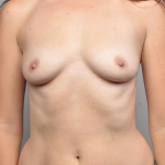 Breast Augmentation, Dr. Cassileth, Case 19 Before