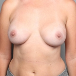 Breast Augmentation, Dr. Cassileth, Case 19 After