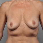 One-Stage Breast Reconstruction, Dr. Cassileth, Case 42 Before
