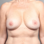 One-Stage Breast Reconstruction, Dr. Cassileth, Case 42 After