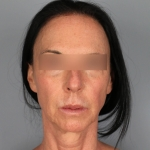 Facelift, Dr. Chang, Case 9 Before
