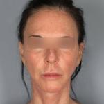 Facelift, Dr. Chang, Case 9 After